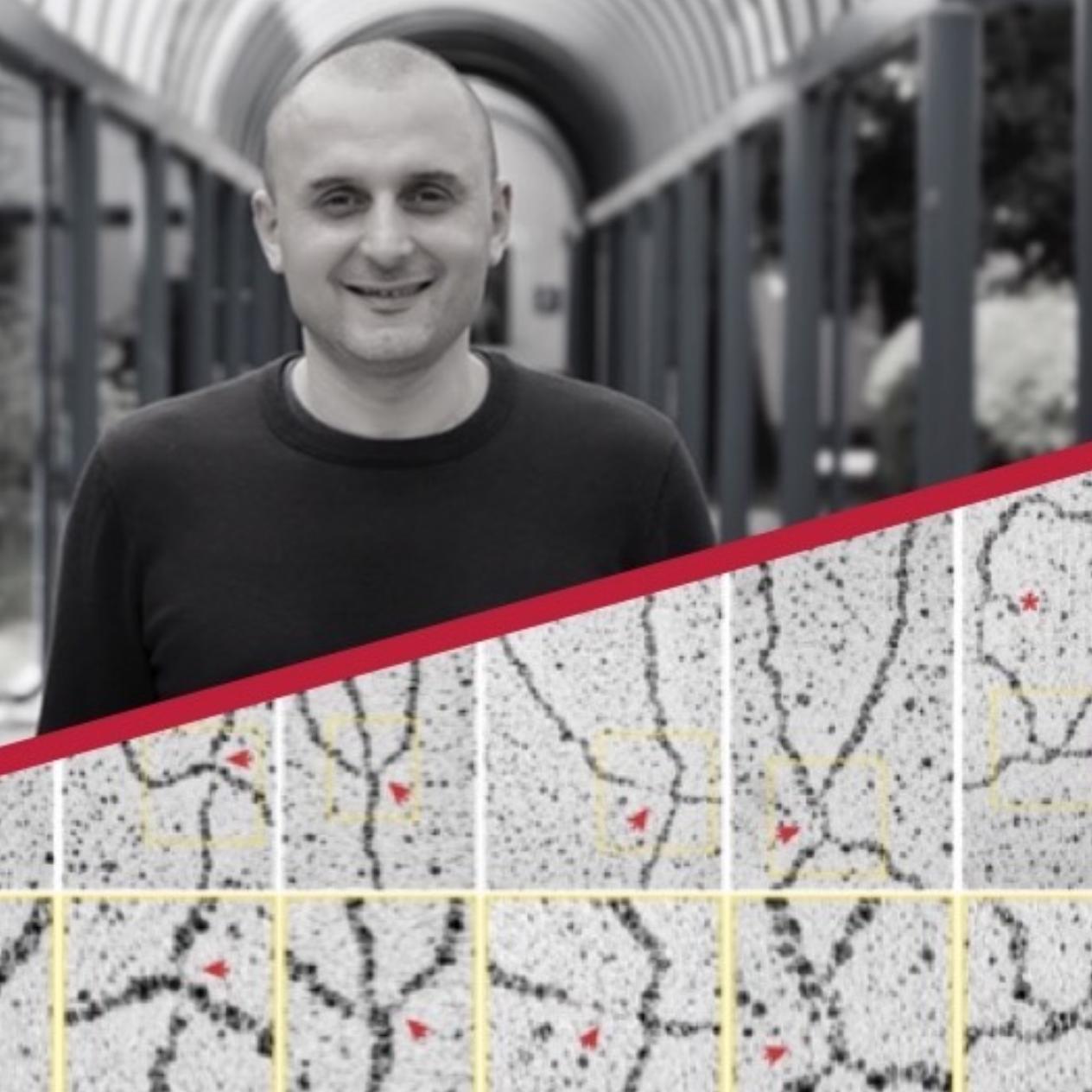 Ylli Doksani një  personalitet shkencor që studion AD-n një karriere mes Shqiperisë dhe SHBA-së dhe tani në Itali.